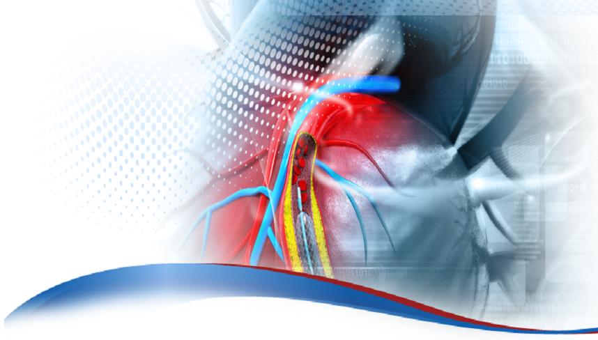 Ιnterventional Cardiology